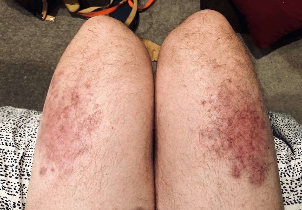 My legs after the Maori Haka